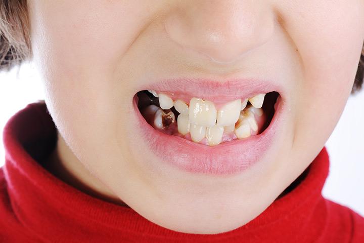 Шүд цоорох өвчний тархалт БАГА...