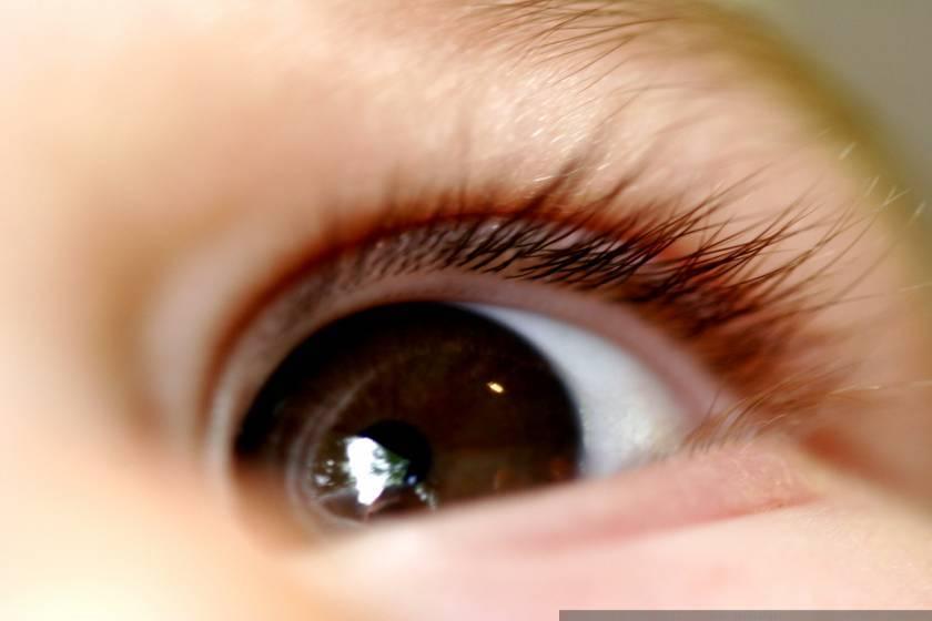 Хүүхдийн нүдний мэс заслын тусламжийг...